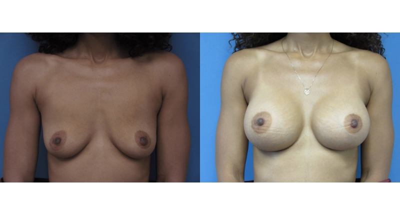 front view case 10 breast augmentation before and after Denver Plastic Surgery Dr Christine Rodgers width='800