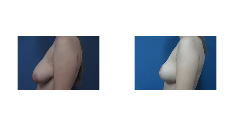 side view case 11 uneven sized breast augmentation before and after Denver Plastic Surgery Dr Christine Rodgers width='800