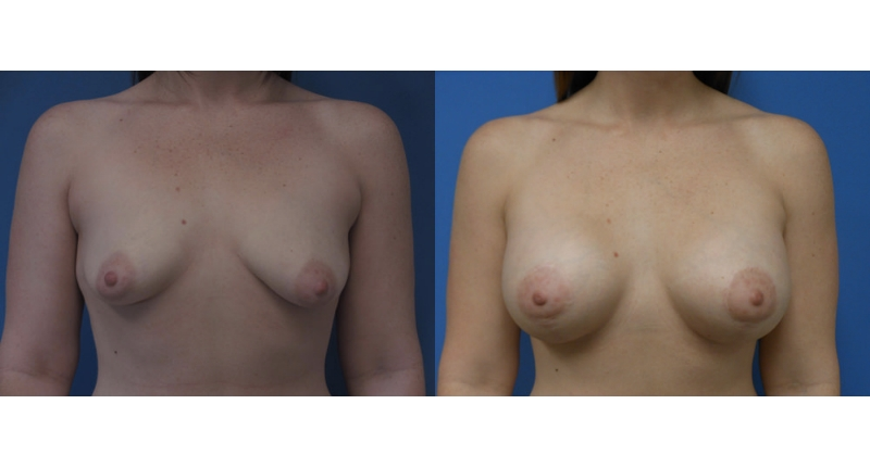 front view case 12 breast augmentation before and after Denver Plastic Surgery Dr Christine Rodgers width='800