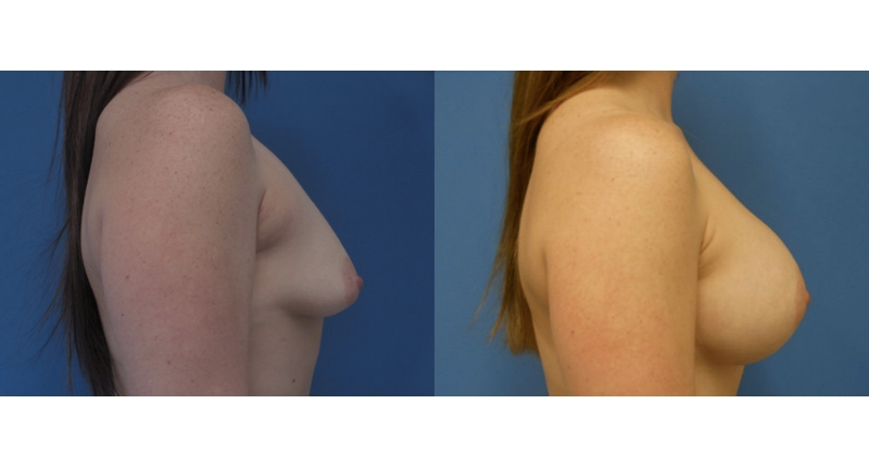 side view case 12 breast augmentation before and after Denver Plastic Surgery Dr Christine Rodgers width='800