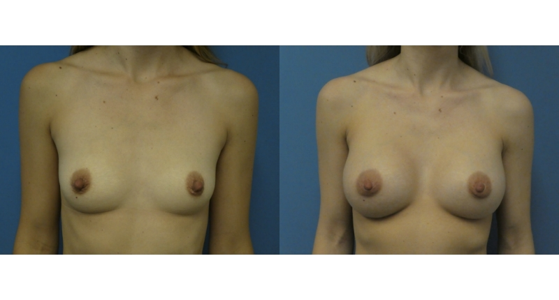 front view case 1 breast augmentation before and after Denver Plastic Surgery Dr Christine Rodgers width='800