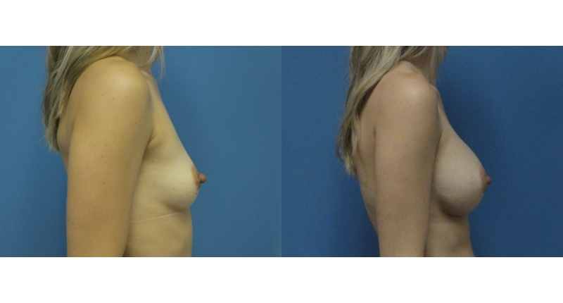 side view case 1 breast augmentation before and after Denver Plastic Surgery Dr Christine Rodgers width='800
