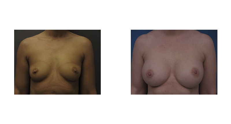front view case 2 breast augmentation before and after Denver Plastic Surgery Dr Christine Rodgers width='800