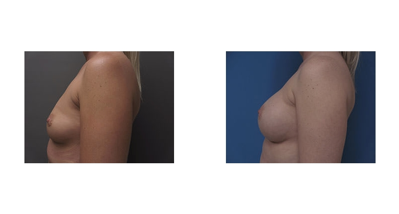 side view case 2 breast augmentation before and after Denver Plastic Surgery Dr Christine Rodgers width='800