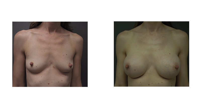 front view case 3 small to larger breasts with pointy nipples breast augmentation before and after Denver Plastic Surgery Dr Christine Rodgers width='800
