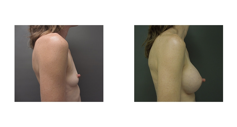 view small case 3 to larger breast with pointy nipples breast augmentation before and after Denver Plastic Surgery Dr Christine Rodgers width='800