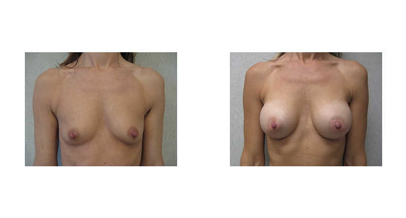 front view case 4 breast augmentation before and after Denver Plastic Surgery Dr Christine Rodgers width='800