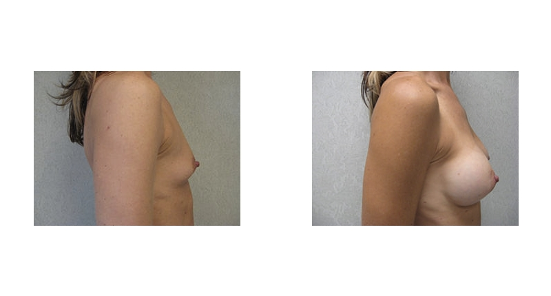 side view case 4 breast augmentation before and after Denver Plastic Surgery Dr Christine Rodgers width='800
