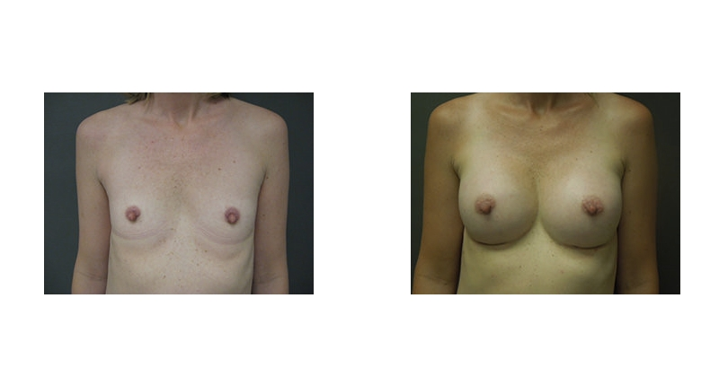 front view flat chest to larger case 5 breast augmentation before and after Denver Plastic Surgery Dr Christine Rodgers width='800