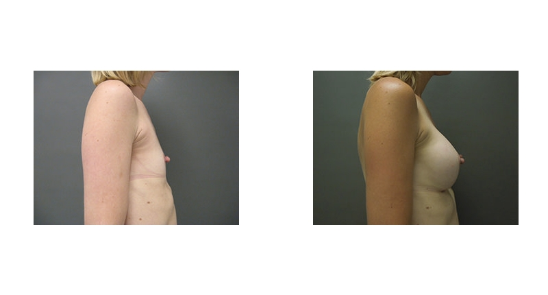 side view case 5 flat chest to larger breast augmentation before and after Denver Plastic Surgery Dr Christine Rodgers width='800