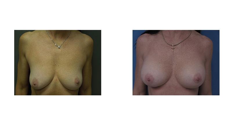 Breast Augmentation width='800