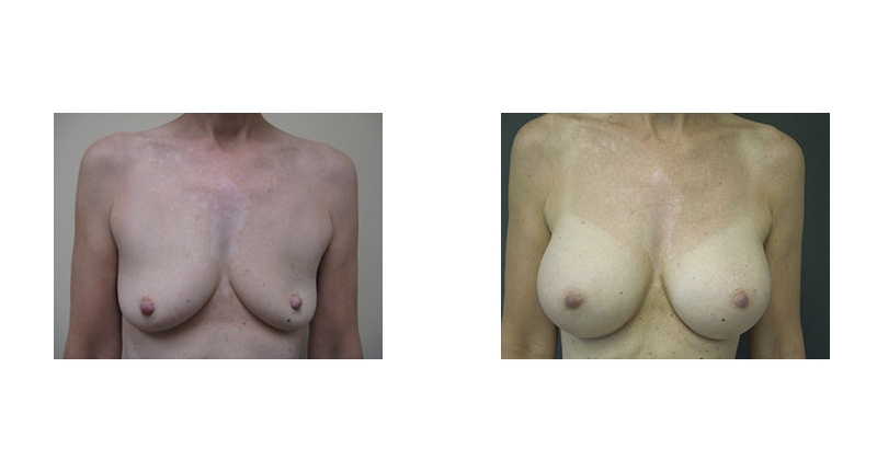 front view case 8 deflated looking breast augmentation before and after Denver Plastic Surgery Dr Christine Rodgers width='800