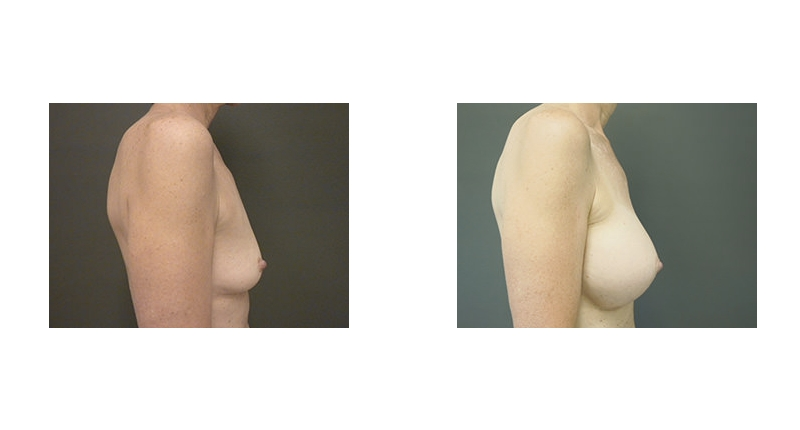 side view case 8 breast augmentation before and after Denver Plastic Surgery Dr Christine Rodgers width='800