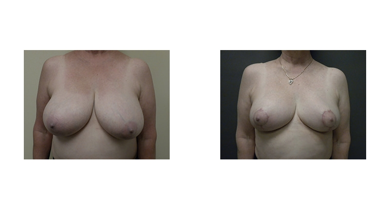 front view case 1 reduction breast augmentation before and after Denver Plastic Surgery Dr Christine Rodgers width='800