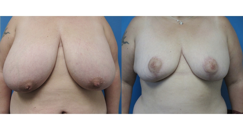 front view breast case 2 major reduction augmentation before and after Denver Plastic Surgery Dr Christine Rodgers width='800