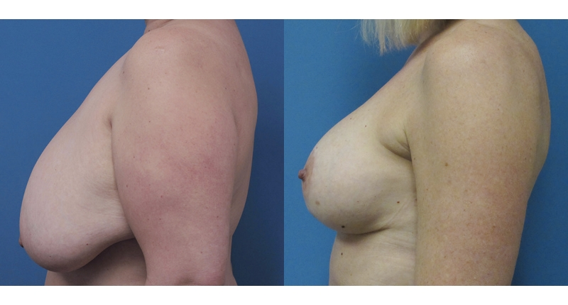 side view breast augmentation case 2 before and after Denver Plastic Surgery Dr Christine Rodgers width='800