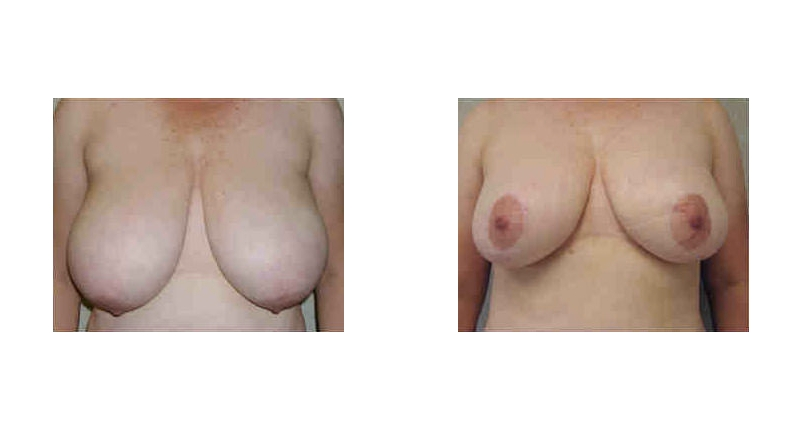 front view case 3 breast augmentation before and after Denver Plastic Surgery Dr Christine Rodgers width='800