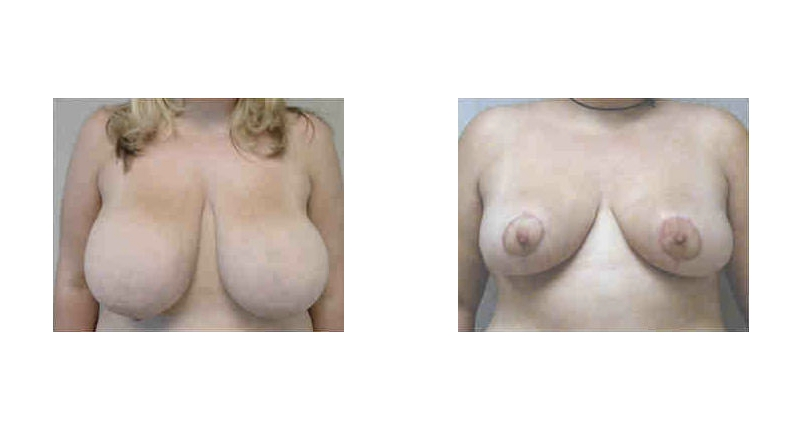 front view case 4 breast reduction augmentation before and after Denver Plastic Surgery Dr Christine Rodgers width='800