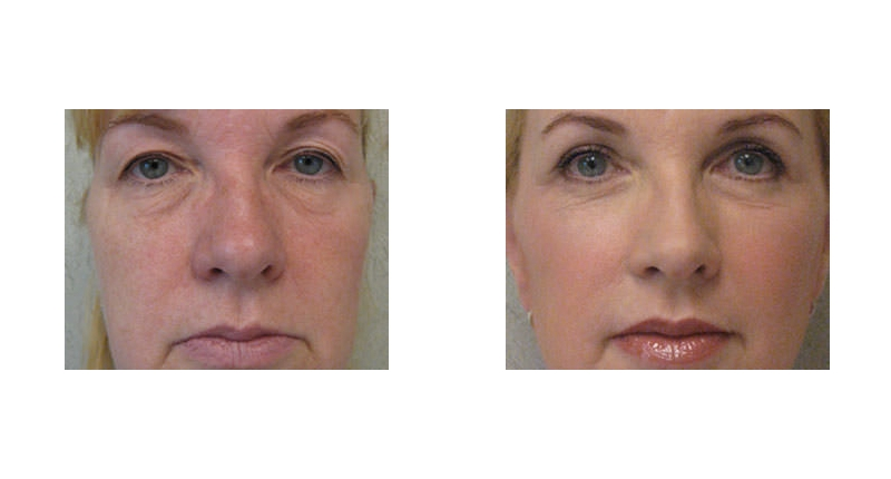 close up view of fat transfer surgery before and after case 1 Dr Christine Rodgers with Denver Plastic Surgery width='800