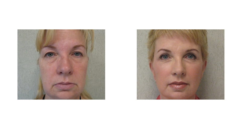 front view of fat transfer surgery before and after case 1 Dr Christine Rodgers with Denver Plastic Surgery width='800