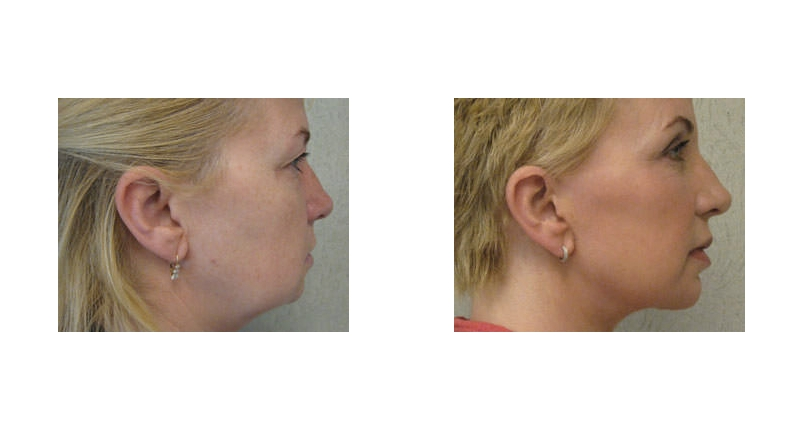 right side view of fat transfer surgery before and after case 1 Dr Christine Rodgers with Denver Plastic Surgery width='800