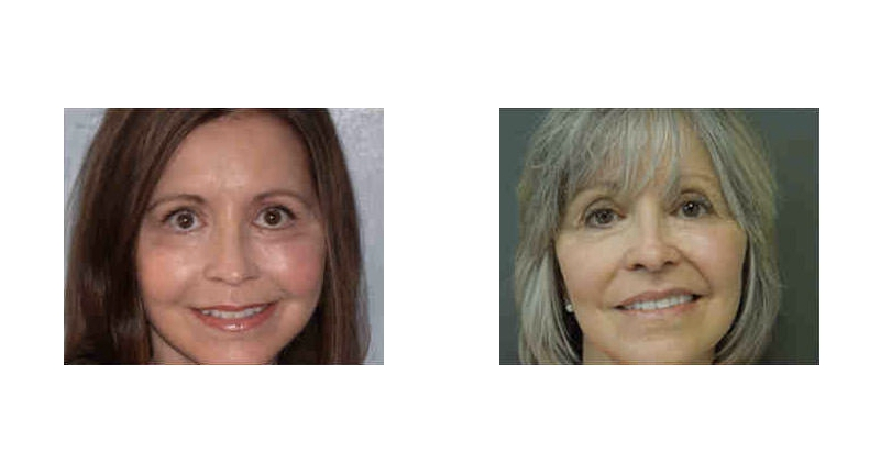 front view of fat transfer surgery before and after case 2 Dr Christine Rodgers with Denver Plastic Surgery width='800