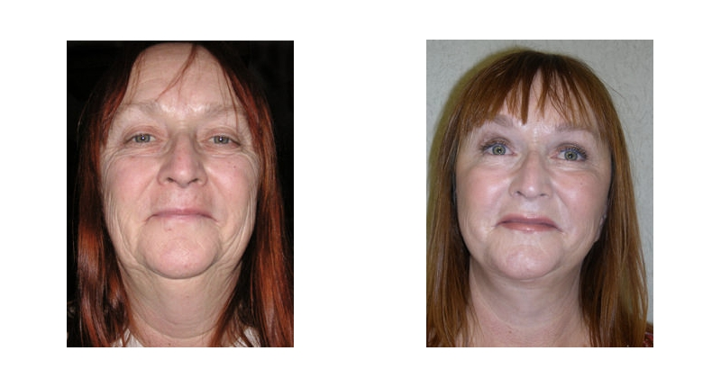 front view of fat transfer surgery before and after case 3 Dr Christine Rodgers with Denver Plastic Surgery width='800