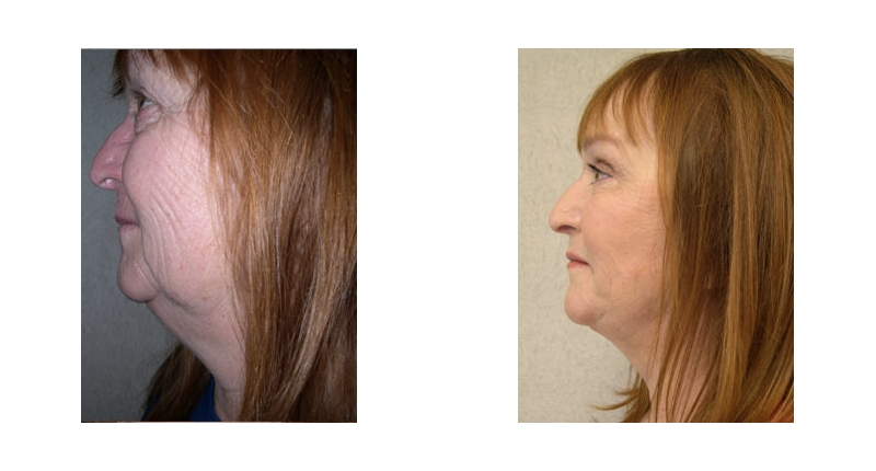 left side view of fat transfer before and after case 3 Dr Christine Rodgers with Denver Plastic Surgery width='800