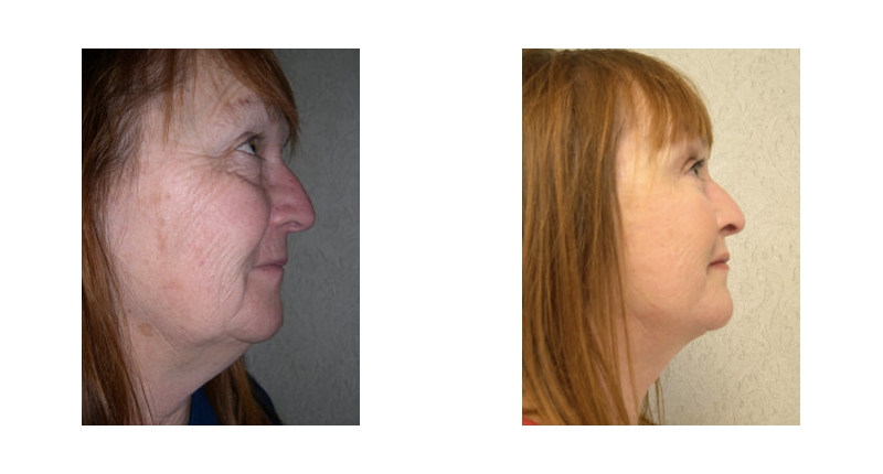 right side view of fat transfer before and after case 3 Dr Christine Rodgers with Denver Plastic Surgery width='800