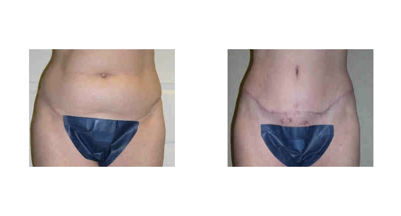 liposuction frontal view before and after case 1 Dr Christine Rodgers with Denver Plastic Surgery width='800