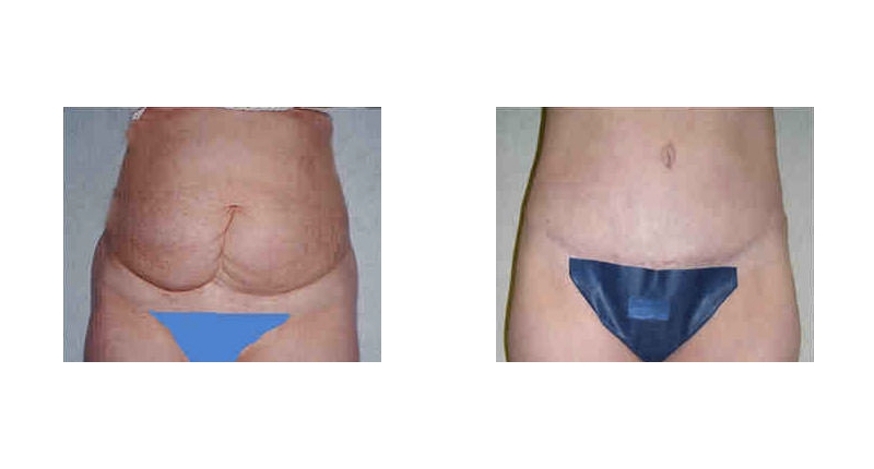 liposuction frontal view before and after case 3 Dr Christine Rodgers with Denver Plastic Surgery width='800