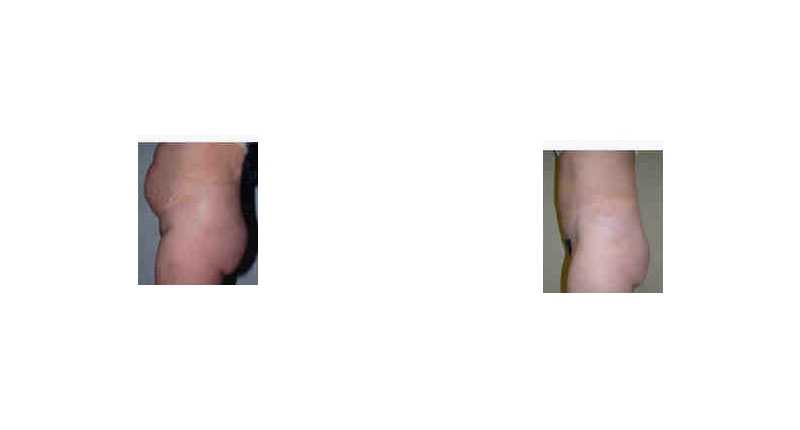 liposuction side view before and after case 3 Dr Christine Rodgers with Denver Plastic Surgery width='800