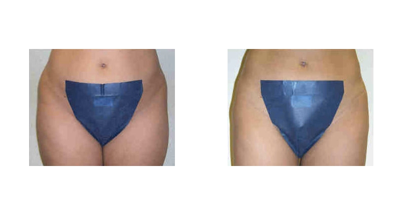 liposuction front view before and after case 5 Dr Christine Rodgers Denver Plastic Surgery width='800