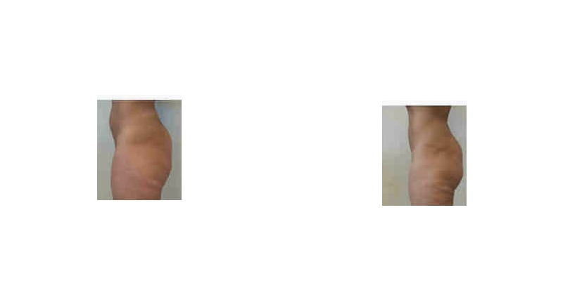 liposuction side view before and after case 6 Dr Christine Rodgers Denver Plastic Surgery width='800