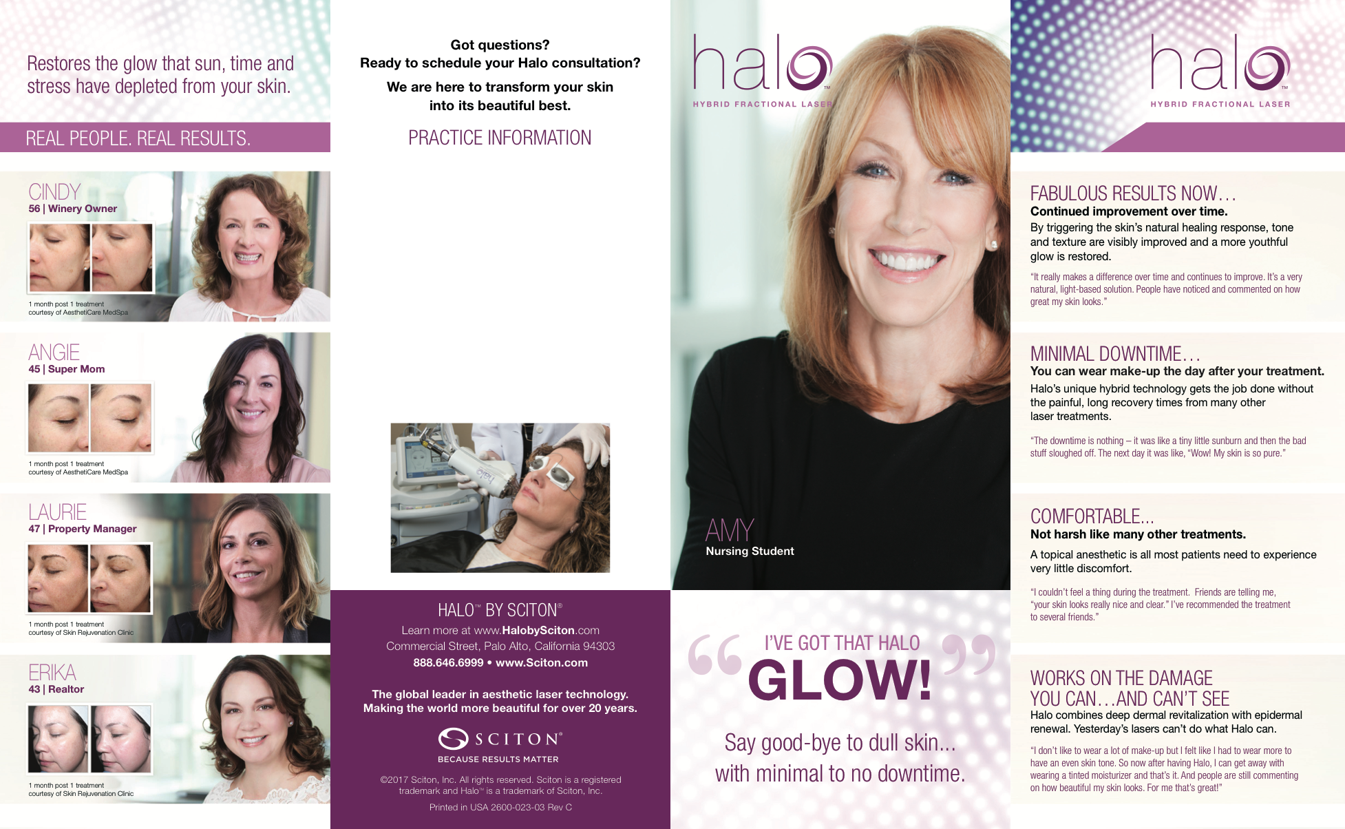 Halo Fractional Laser Information